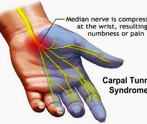 Identify, Treat, and Prevent Carpal Tunnel Syndrome Week 30